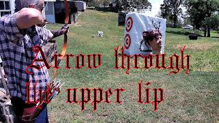 Arrow through the upper lip
