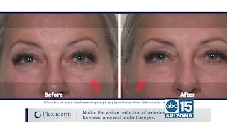 Look and feel your best with Plexaderm