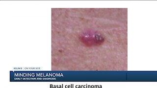 Minding Melanoma Early Diagnosis