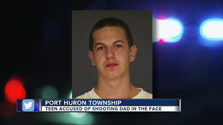 Teenager accused of shooting his father in the face