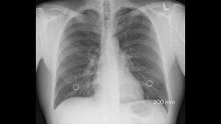 Common Asthma Medication Reverses Covid19!