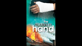 The Scarred Hand