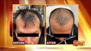 Hair Restoration Options for Men and Women