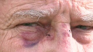 Police investigating after man says he was beaten outside his Denver apartment