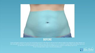 MD Body MedSpa- Coolsculpting After Your Sweet Treats This Fall