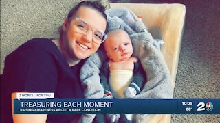 Sand Springs mother raising awareness about son's rare medical condition