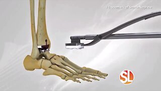 Phoenix Foot and Ankle Institute explains how they do a total ankle replacement for ankle arthritis
