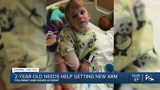 2-year-old needs help getting new arm