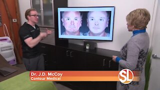 Contour Medical: How to get smoother, younger looking skin