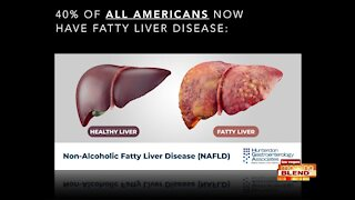 3 Ways Fatty Liver Stops Weight Loss Library