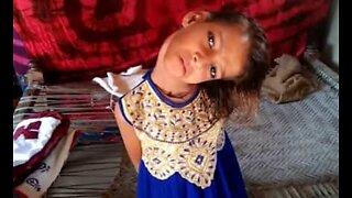 Nakken til dette pakistanske barnet står 90 grader feil
