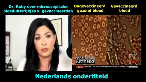 Dr. Jane Ruby over microscopische bloeduitstrijkjes van gevaccineerden - beschadigde bloedcellen!