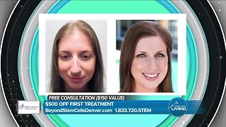 Beyond Stem Cells - Guaranteed Results!