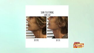 Look Younger with Lasting Results