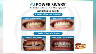 Whiten Your Smile With Power Swabs
