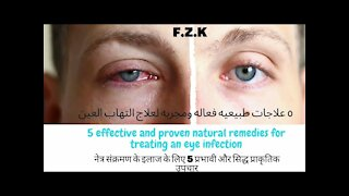 5 effective and proven natural remedies for treating an eye infection (eye infection) at home