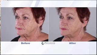 Look how fast you can look younger with Plexaderm