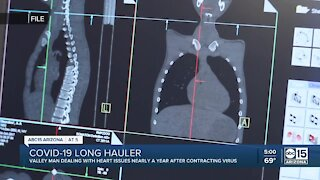 Valley man dealing with heart issues nearly a year after contracting COVID-19