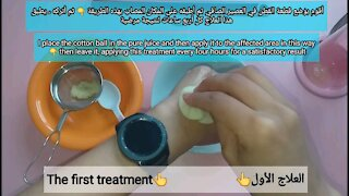 Three natural remedies for getting rid of swollen and swollen external hemorrhoids at home