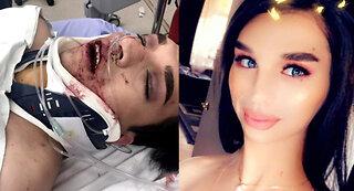 Transgender woman viciously beaten in LoDo
