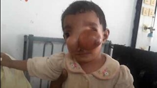Kid with rare nasal abnormality undergoes surgery