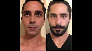 Beard Growth Time Lapse