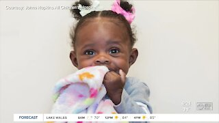 Baby Dream survives two medical malformations to become an inspiration to doctors