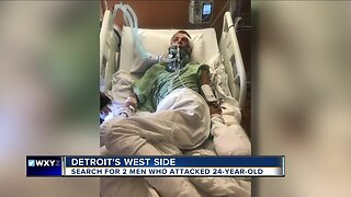Detroit police searching for 2 suspects who attacked 24-year-old man