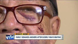 Family hopes for arrest after brutal beating