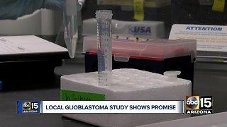 Local Glioblastoma study shows promise