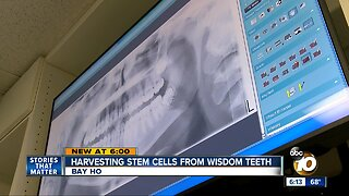 Harvesting stem cells from wisdom teeth