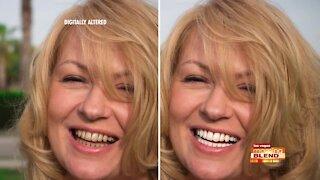 Whiten Your Smile