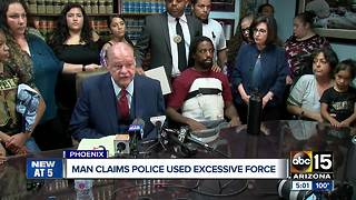 Man claims Phoenix police used excessive force