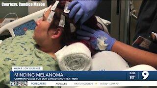 Minding Melanoma: Surgery and treatment