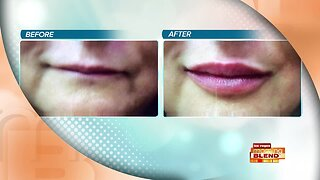 Pucker Up With Your Beautiful Lips!