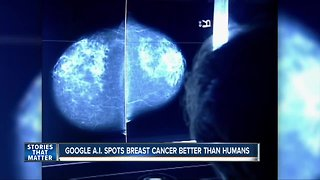 Google says AI can spot breast cancer better than humans
