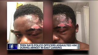 Teen says police officers assaulted him during arrest in East Lansing