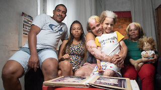 The Family With 'Piebald' Skin   BORN DIFFERENT