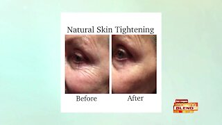 A Facelift Without Surgery
