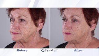 You're NEVER too old to look younger with Plexaderm