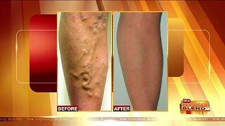 Advancements in Treating Vein Disease
