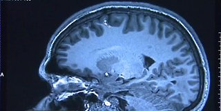 New study says Alzheimer's could be detected sooner