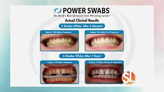 Let Power Swabs power a whiter, brighter smile!