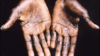 South Africa - Cape Town - MonkeyPox (Video) (neL)