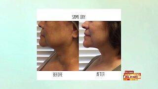 Tighten Your Skin & Look Your Best!