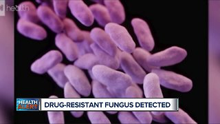 Ask Dr. Nandi: Why this drug-resistant fungus is spreading