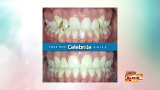 Celebrate a Perfect Smile Today