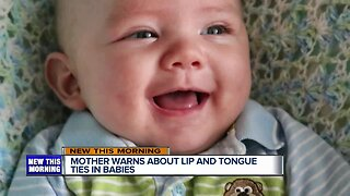 Spreading awareness about lip and tongue ties in babies