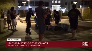 Valley photographer injured in Phoenix protest released from hospital