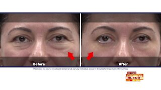 Look Younger Without Surgery or Injections